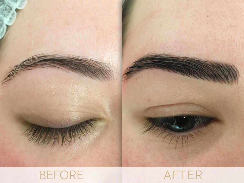 Brittany before and after eyebrow micro pigmentation