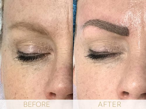 Micropigmentation before & after