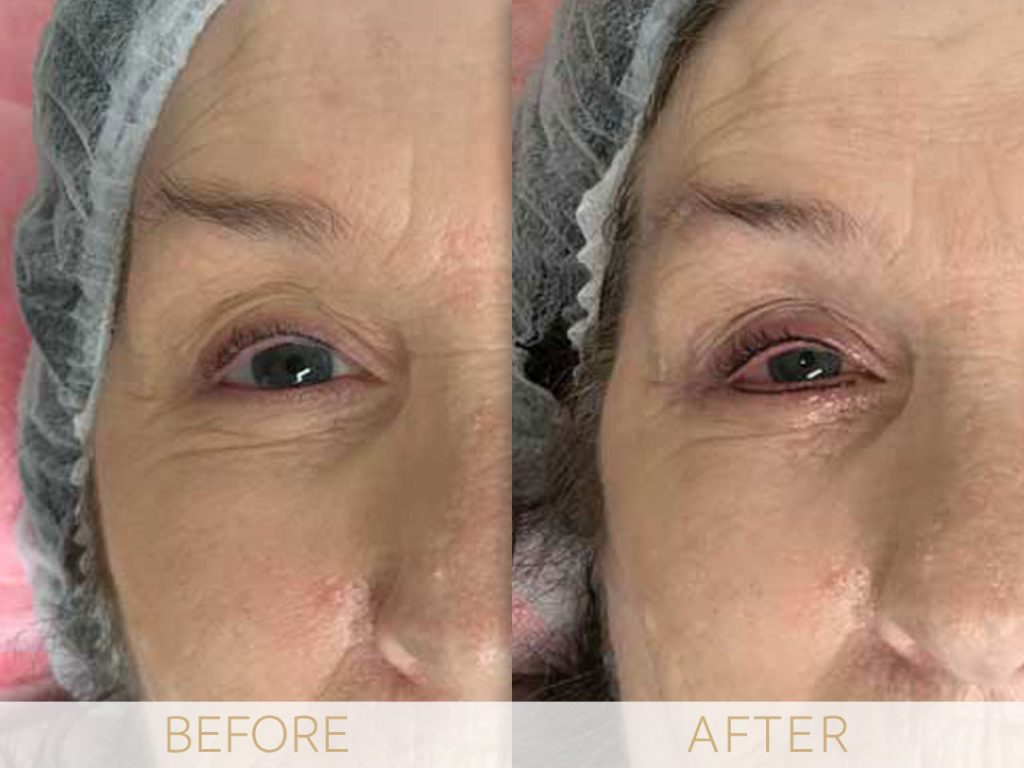 micropigmentation eye-ehancment, before & after