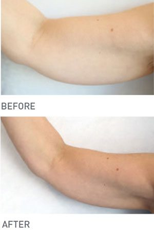 Environ cellulite removal