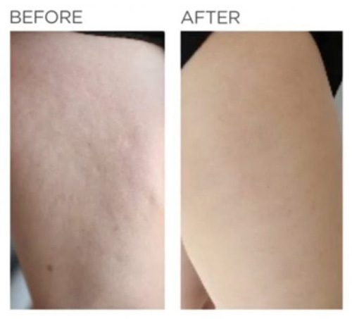 thigh cellulite removal before & after