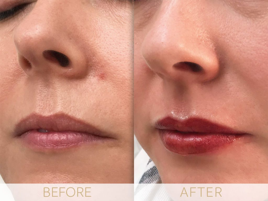 micropigmentation lips before and after