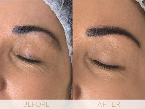 Microblading before & after
