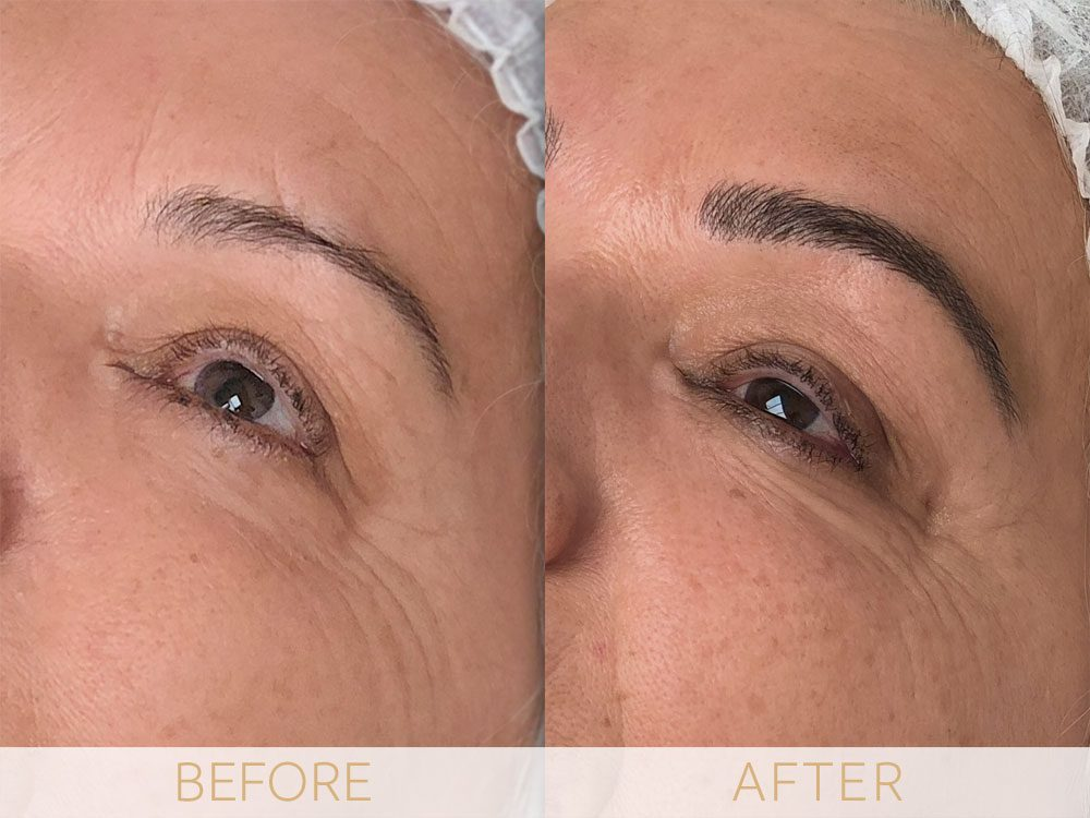 Before & After microblading