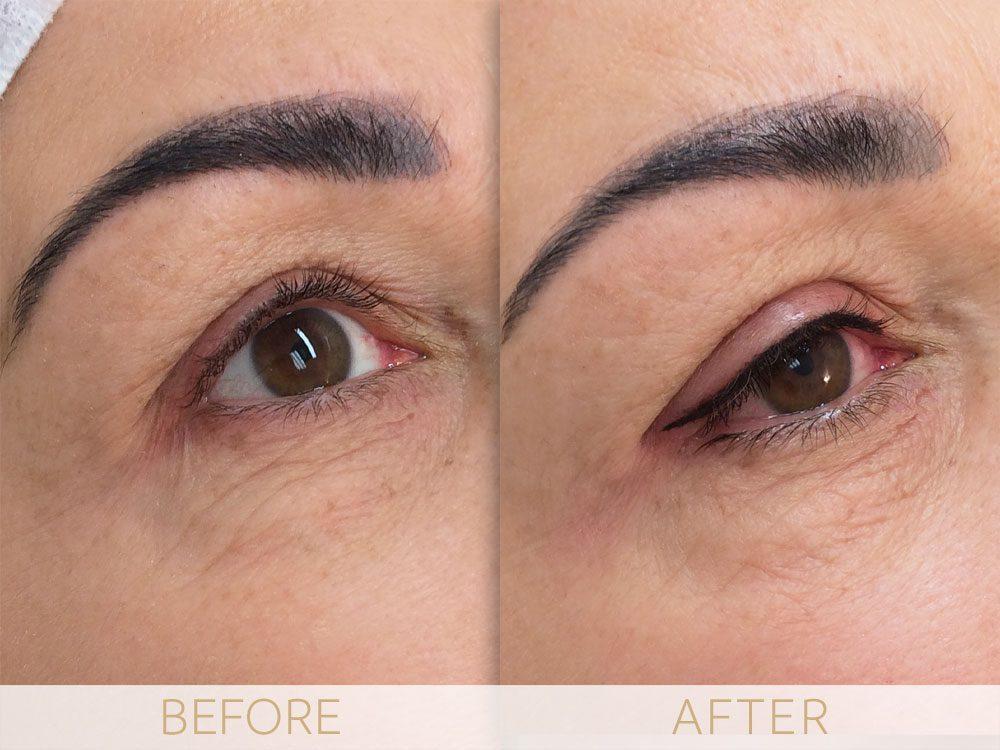eye enhancement before & after