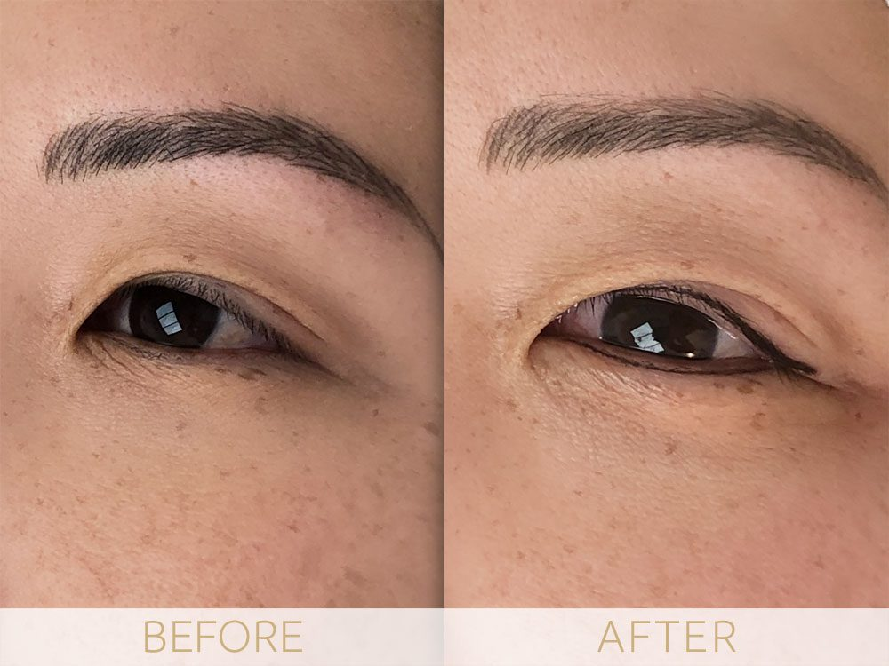 before and after eye enhancement