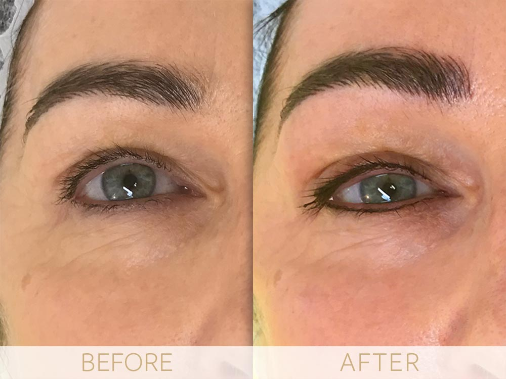 before and after micropigmentation eyes