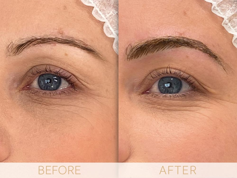 Microblading-Before&After-BROWS-2020-1 Abbey