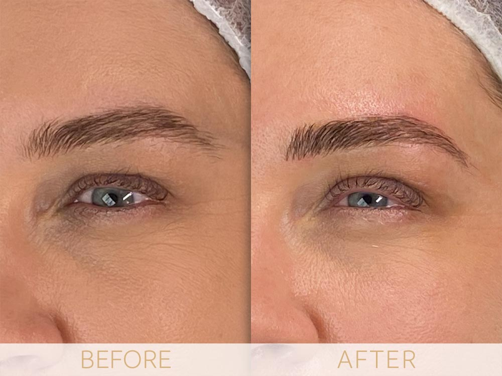 microblading sample before and after brow enhancement