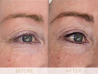 Before & after Micropigmentation eye enhancement