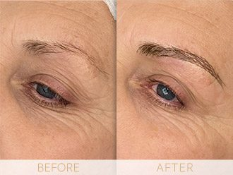 Microblading Before & After BROWS March Angela