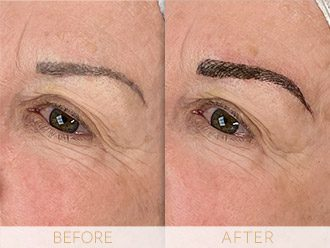 Microblading Before & After BROWS March Ann