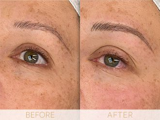 Microblading Before & After BROWS March Dawn