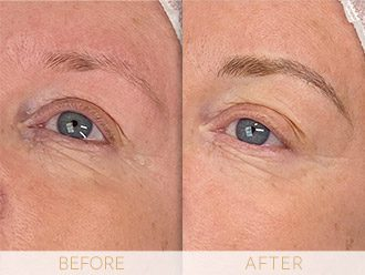 Microblading Before & After BROWS March Debbie