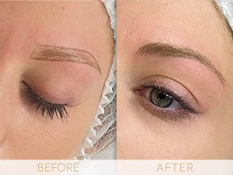 Microblading Before & After BROWS March Elisha