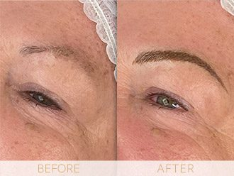 Microblading Before & After BROWS March Heather