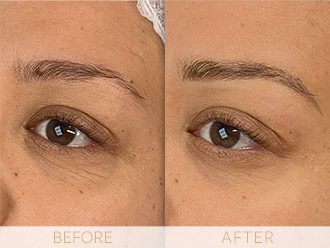 Microblading Before & After BROWS March Jae