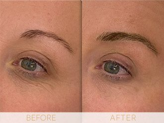 Microblading Before & After BROWS March Leana
