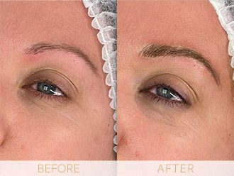 Microblading Before & After BROWS March Morag
