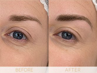 Microblading Before & After BROWS March Neisha