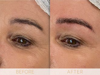 Microblading Before & After BROWS March Nicky