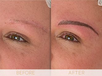 Microblading Before & After BROWS March