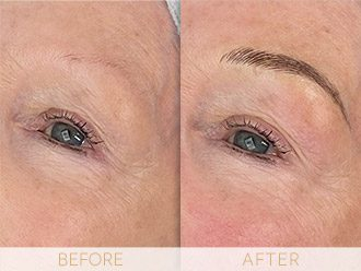 Microblading Before & After BROWS