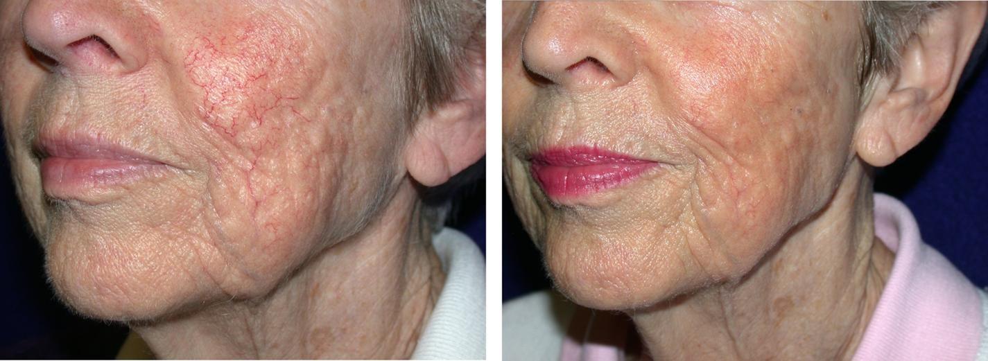 ALMA Rejuvenation vascular skin pigmentation removal Before & after